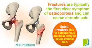 Osteo Fractures